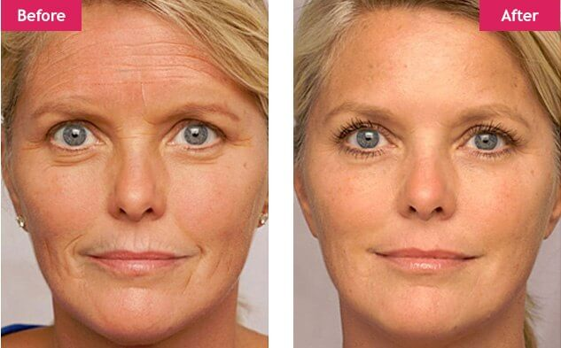 idrotherapy-wrinkle-reducer-reviews-fitbeauty365