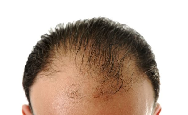 Home Remedies To Fight Hair Fall