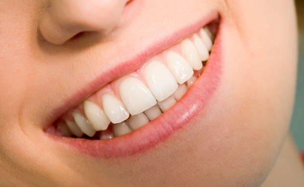 How Much Teeth Whitening Cost
