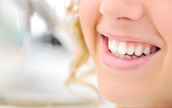 Best Teeth Whitening Products
